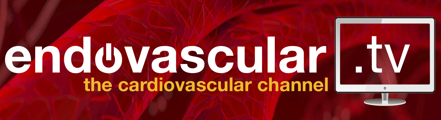 endovascular.tv